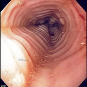 Eosinophilic_esophagitis_endo-526x520