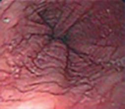 Agravamiento de la esofagitis eosinofílica (EoE)