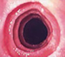 Fase avanzada de la esofagitis eosinofílica (EoE)
