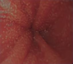 fase inicial de la esofagitis eosinofílica